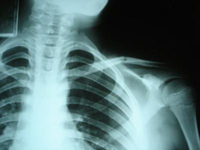 「放射線技師の仕事」の画像検索結果